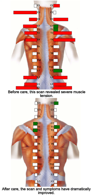 Spine Alignment, Digital Scan, Carrick Chiropractic